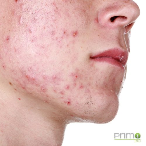 prodotti_acne_eco_bio