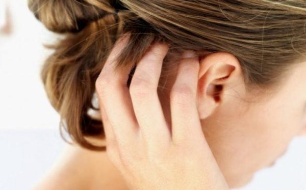 dermatite seborroica cuoio capelluto e capelli