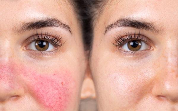 migliore crema viso per rosacea