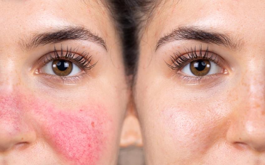 Migliore crema viso per rosacea: ecco quale scegliere